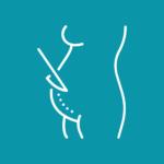 tratamiento cicatriz cesárea